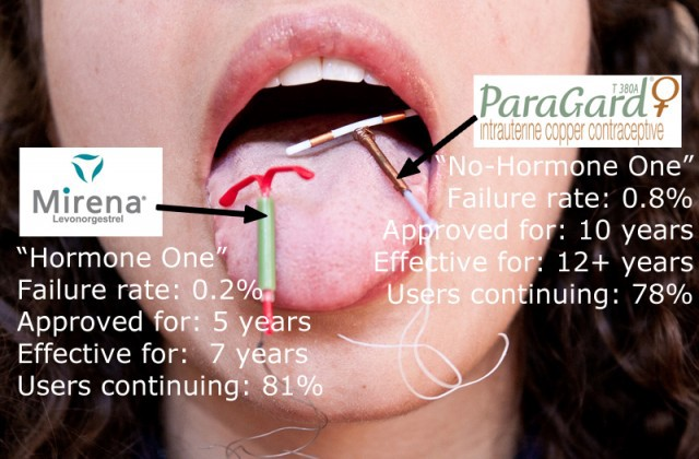 Pain during sex iud mirena
